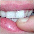 Il rapporto tra una bocca sana e una Prostata sana (parte 2)