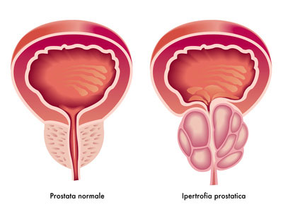 Prostata Ingrossata: 8 Passi per Curare la Prostata Naturalmente