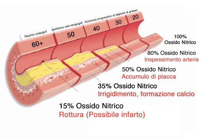 ossido nitrico malattie cardiovascolari